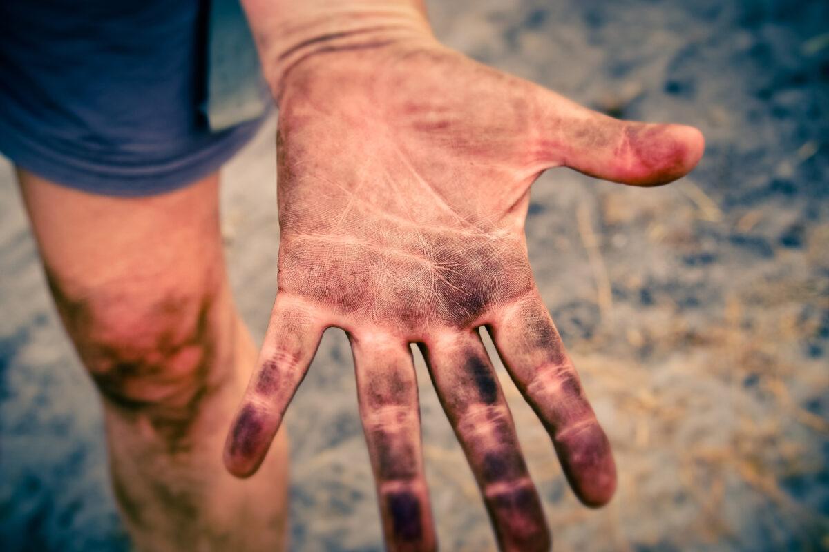 Foto: Dreckige Hand